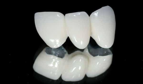 Răng sứ Titan Margin